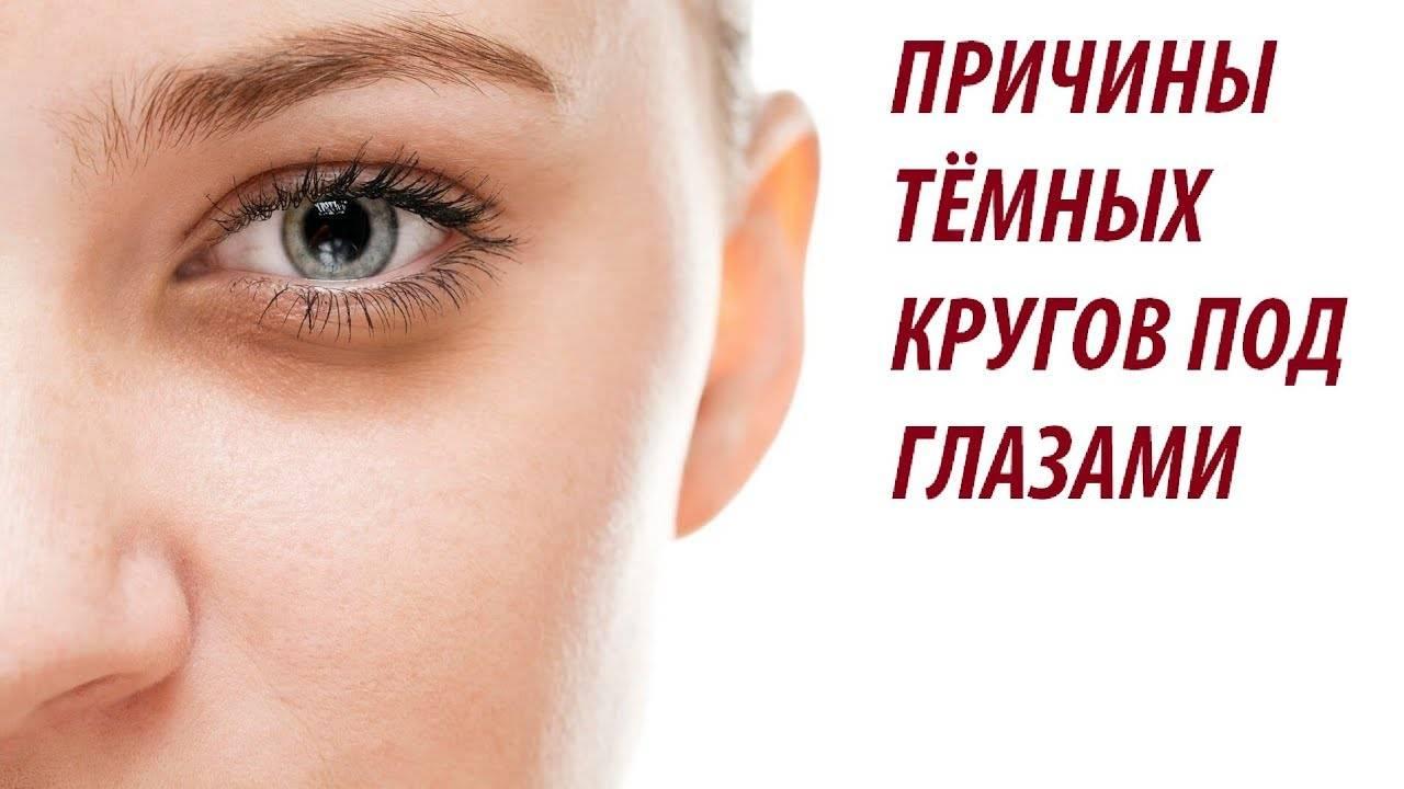 Черные круги под глазами – отчего и как убрать черные круги под глазами? | компетентно о здоровье на ilive