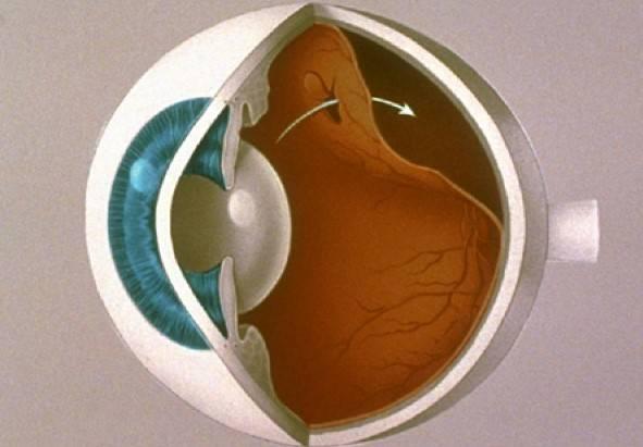 Бады и витамины для укрепления сосудов сетчатки глаз: какие препараты наиболее полезны?