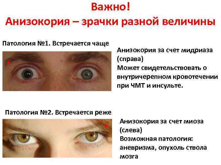 Расширенные зрачки у человека: возможные причины oculistic.ru расширенные зрачки у человека: возможные причины