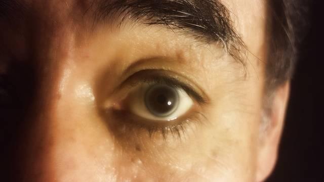 Пелена перед глазами: причины и лечение расплывчатого зрения у человека, как снять пелену