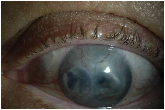 Замена роговицы глаза