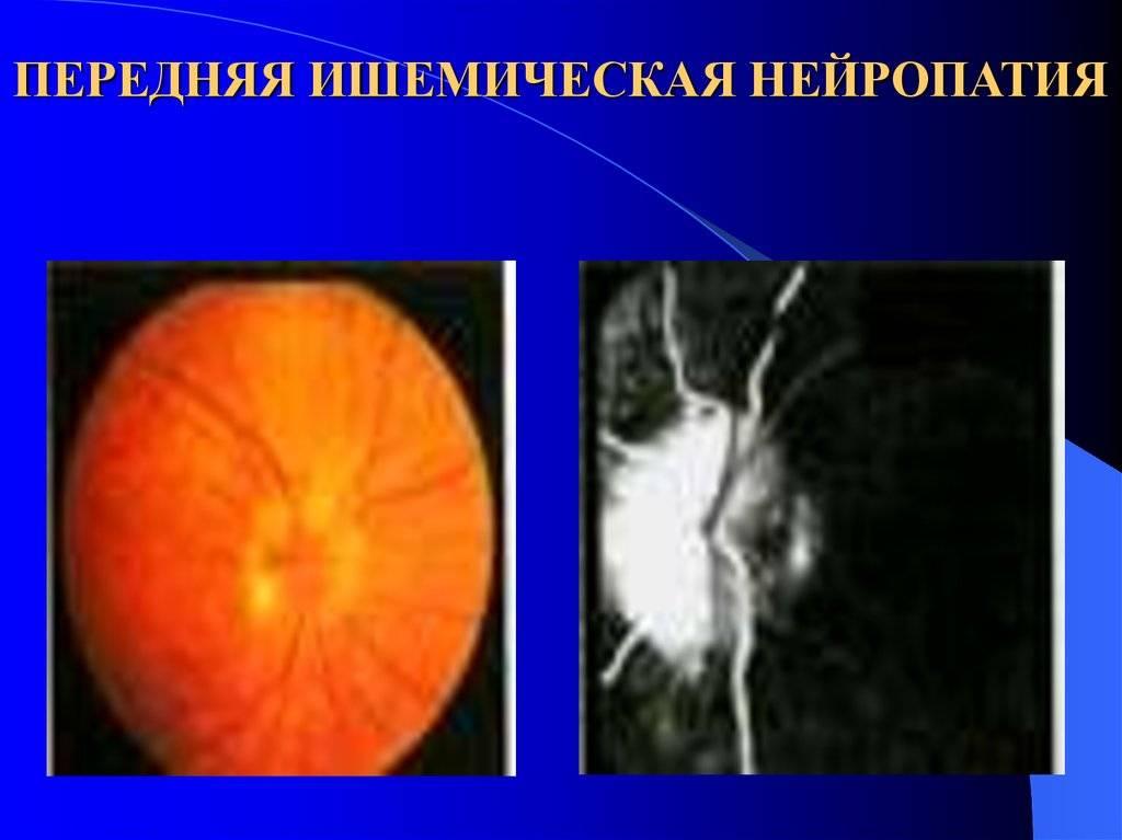 Неврит зрительного нерва: симптомы, лечение, причины, диагностика и осложнения