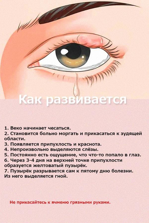 Ячмень на глазу: причины и лечение