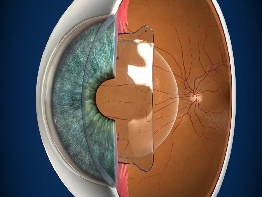 Лазерная коррекция близорукости: показания, противопоказания, разрешенный возраст для операции, как происходит операция, цена