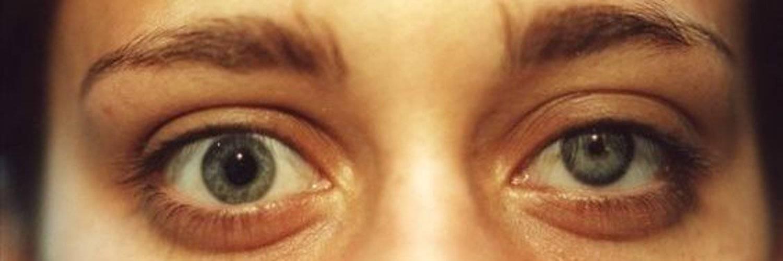 Что такое анизокория: причины, симптомы, лечение oculistic.ru что такое анизокория: причины, симптомы, лечение