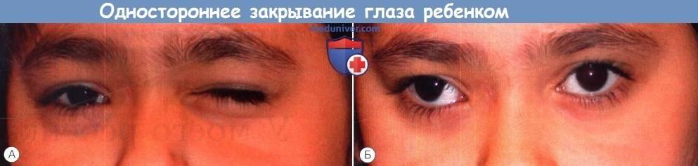Подмигивает, щурится, постоянно трет глаза: как вовремя понять, что у ребенка есть проблемы со зрением