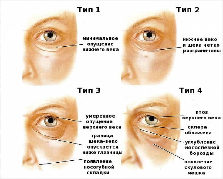 Как правильно называется лазерная коррекция зрения?