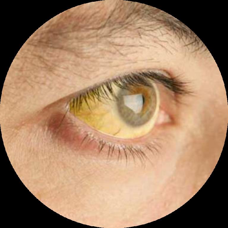 Желтые белки глаз - 7 причин, лечение, профилактика