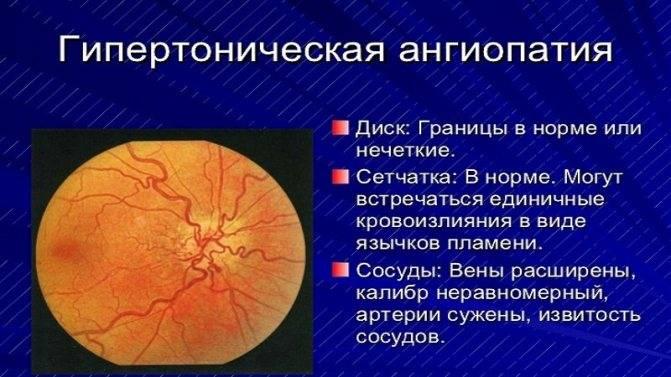 Ангиопатия сетчатки глаза – что это такое и как лечить данное заболевание