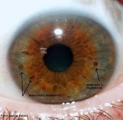 Белое пятно на глазу у человека — основные причины возникновения