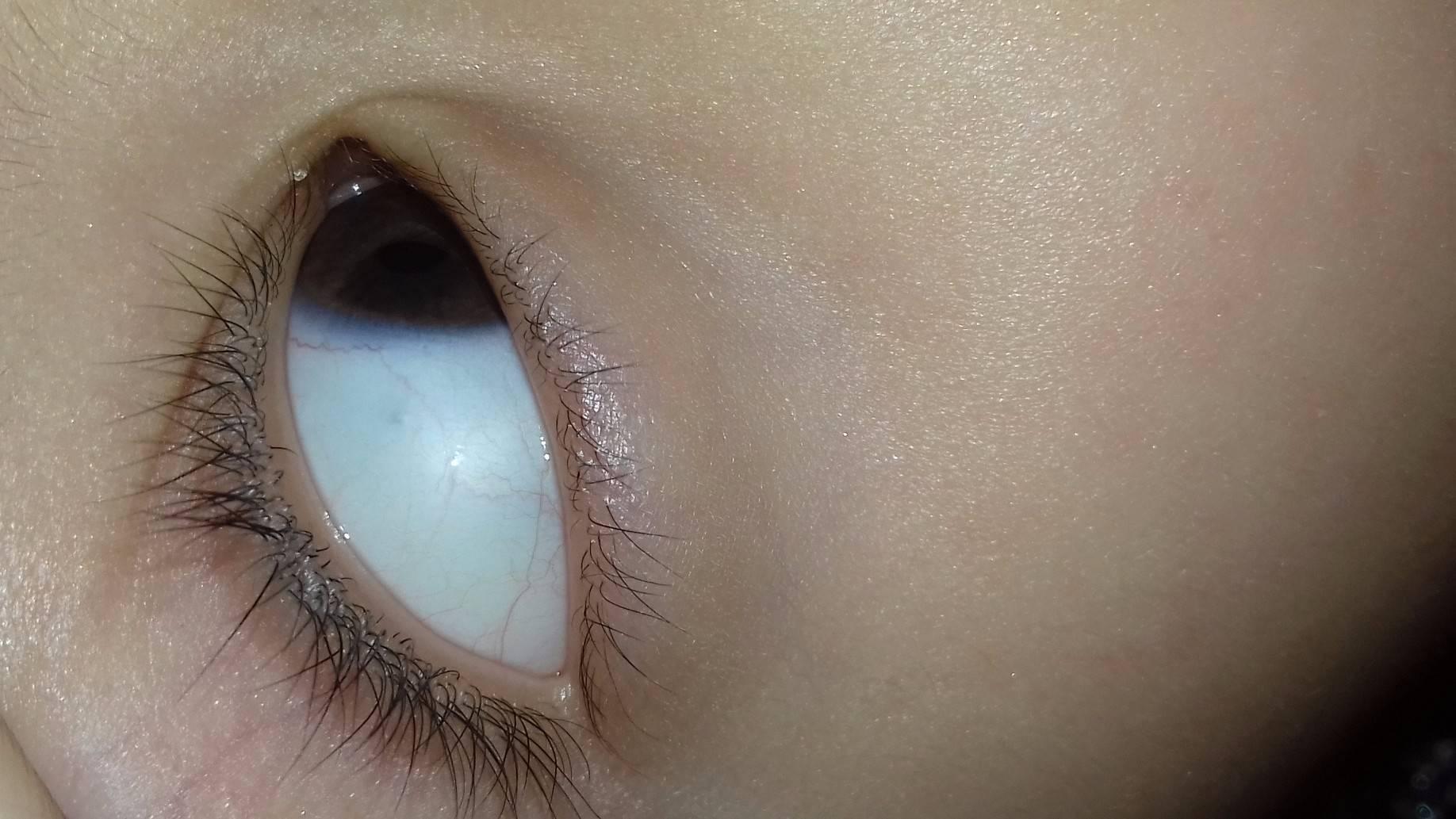 Голубые склеры глаз у ребенка. из-за чего бывают голубыми белки глаз? симптомы, диагностика и лечение
