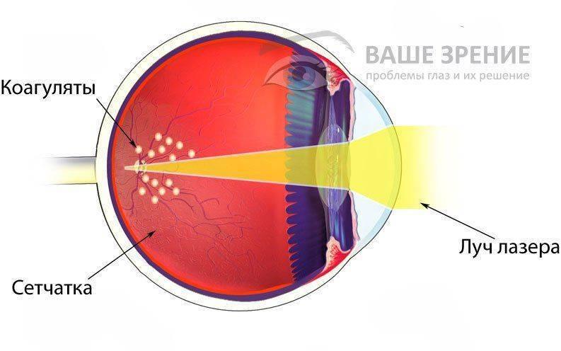 Лазерная коагуляция сетчатки глаза. осложнения, отзывы