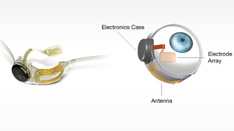 Бионический глаз — мифы и реальность / блог компании клиника офтальмологии доктора шиловой / хабр