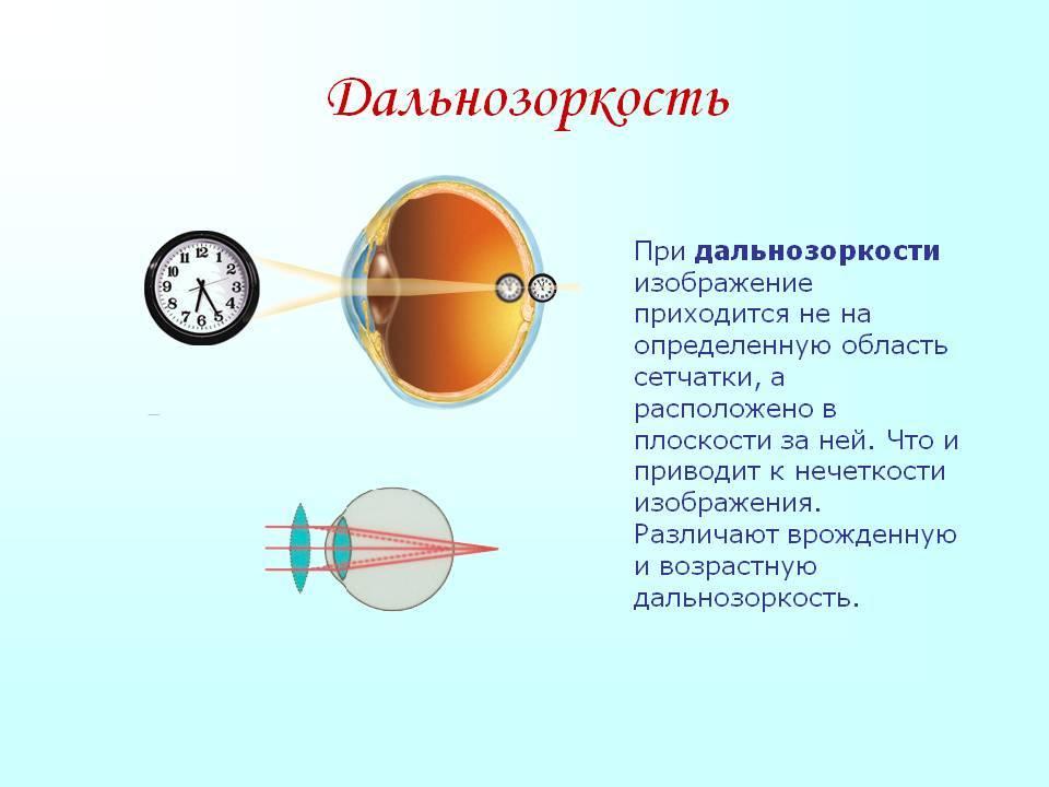 Что такое близорукость - причины и симптомы самой распространенной болезни глаз, виды и степени патологии, диагностика и лечение миопии