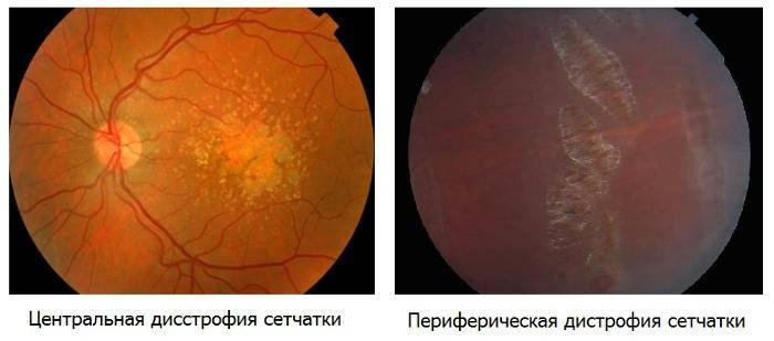 Что такое фоновая ретинопатия и ретинальные сосудистые изменения oculistic.ru