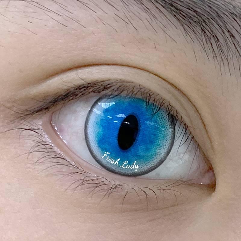 Линзы увеличивающие глаза: фото до и после, виды линз для увеличения зрачков