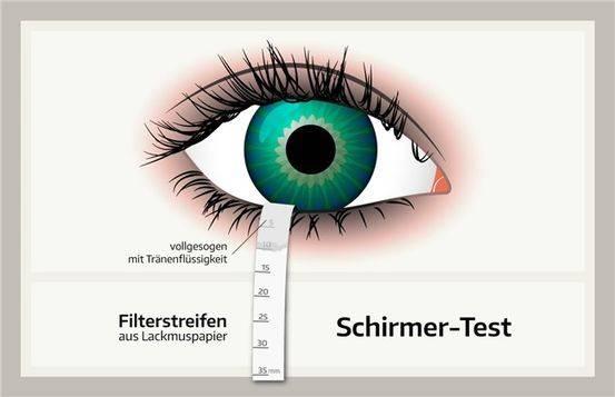 2 способа тестирования сухости глаз пробой ширмера