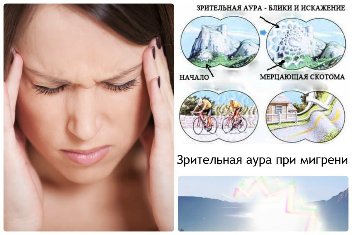 Глазная мигрень: причины, симптомы, диагностика и лечение