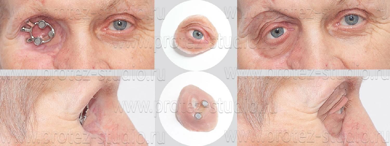 Фрк - операция на глаза: что это за метод, как проходит операция и восстановительный период, отзывы пациентов