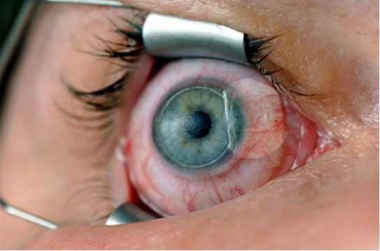 Склеропластика глаз - что это, показания, как проходит операция