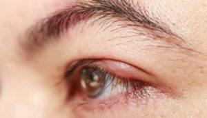 Что делать, если чешутся глаза в уголках: причины и лечение