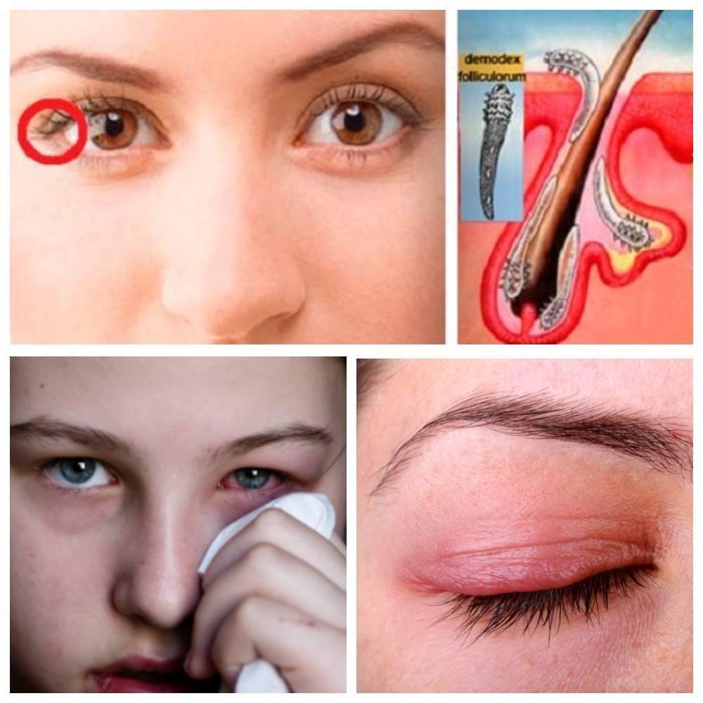 Демодекоз глаз: симптомы, профилактика и лечение заболевания