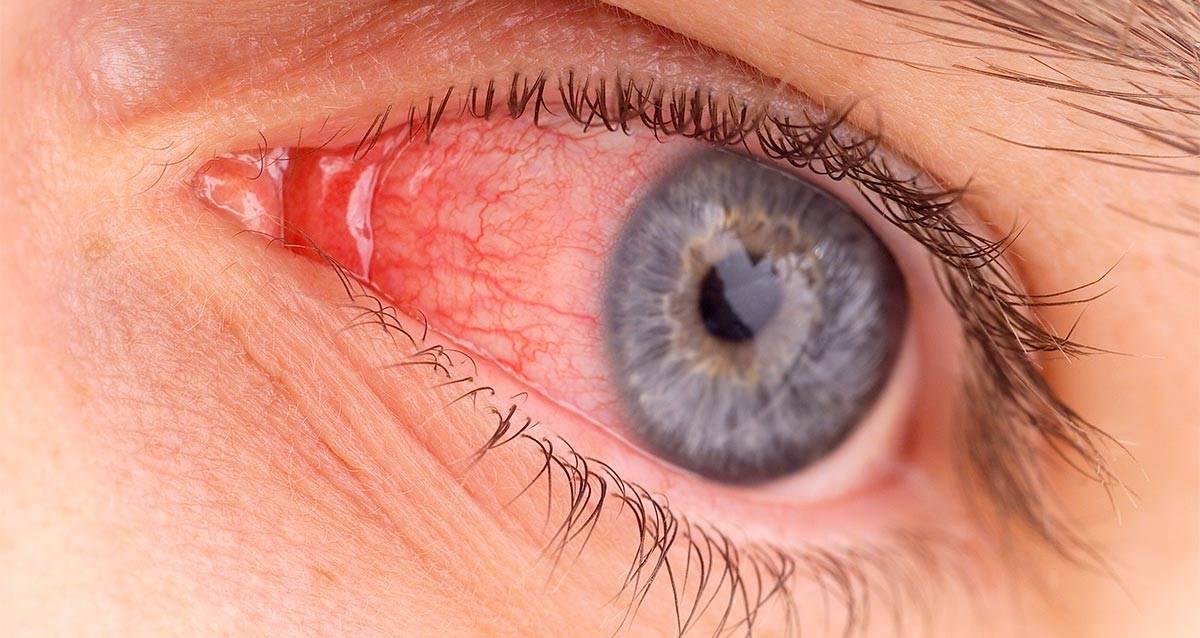 Чем снять воспаление глаза в домашних условиях