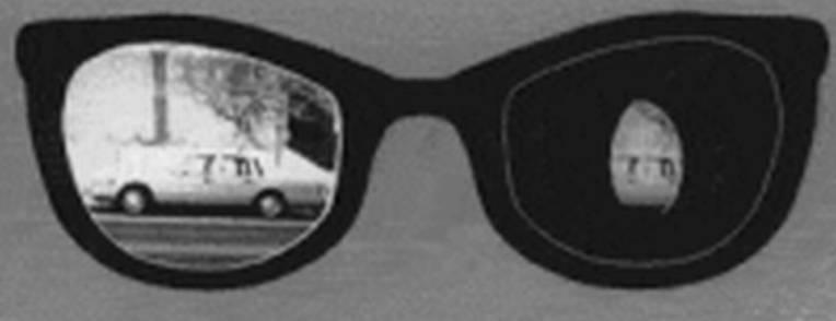 Монокулярное зрение: что это такое, лечение повязками диплопии, зрительных аберраций, бликов