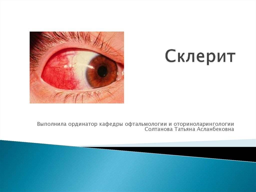 Эписклерит глаза: причины, симптомы и лечение oculistic.ru эписклерит глаза: причины, симптомы и лечение