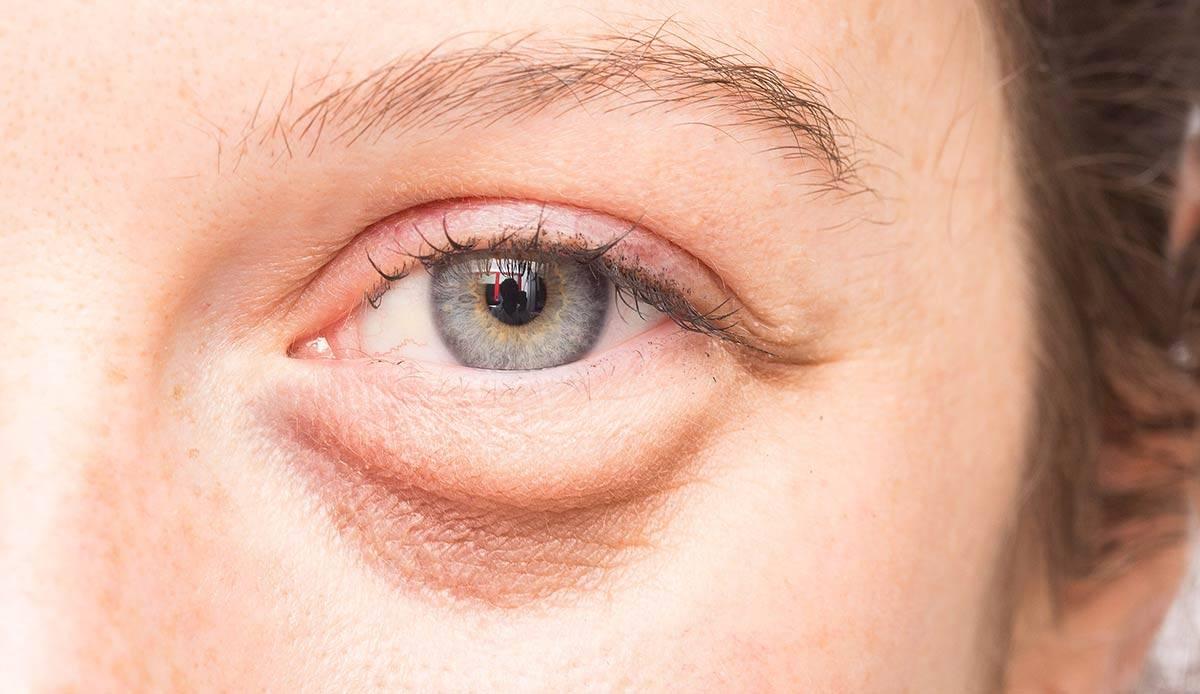 Болит глаз под верхним веком (больно нажимать, моргать, что-то попало) – что делать