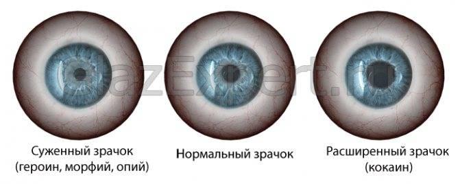 Разные зрачки по размеру у взрослого: причины возникновения, как называется болезнь и как лечится