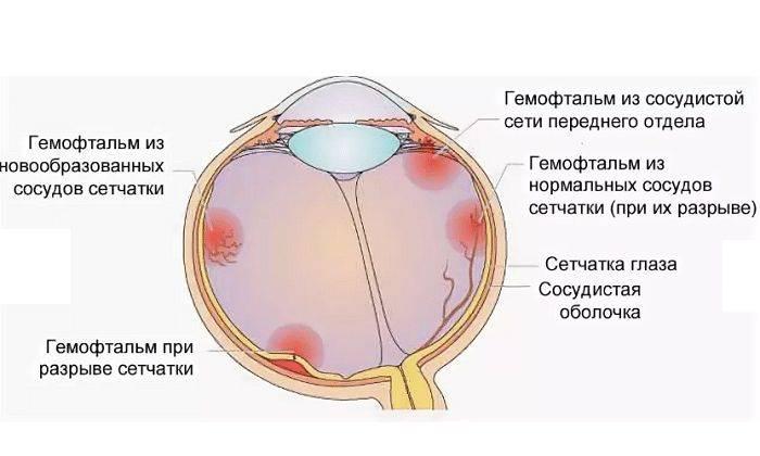 Гемофтальм (кровоизлияние в стекловидное тело)