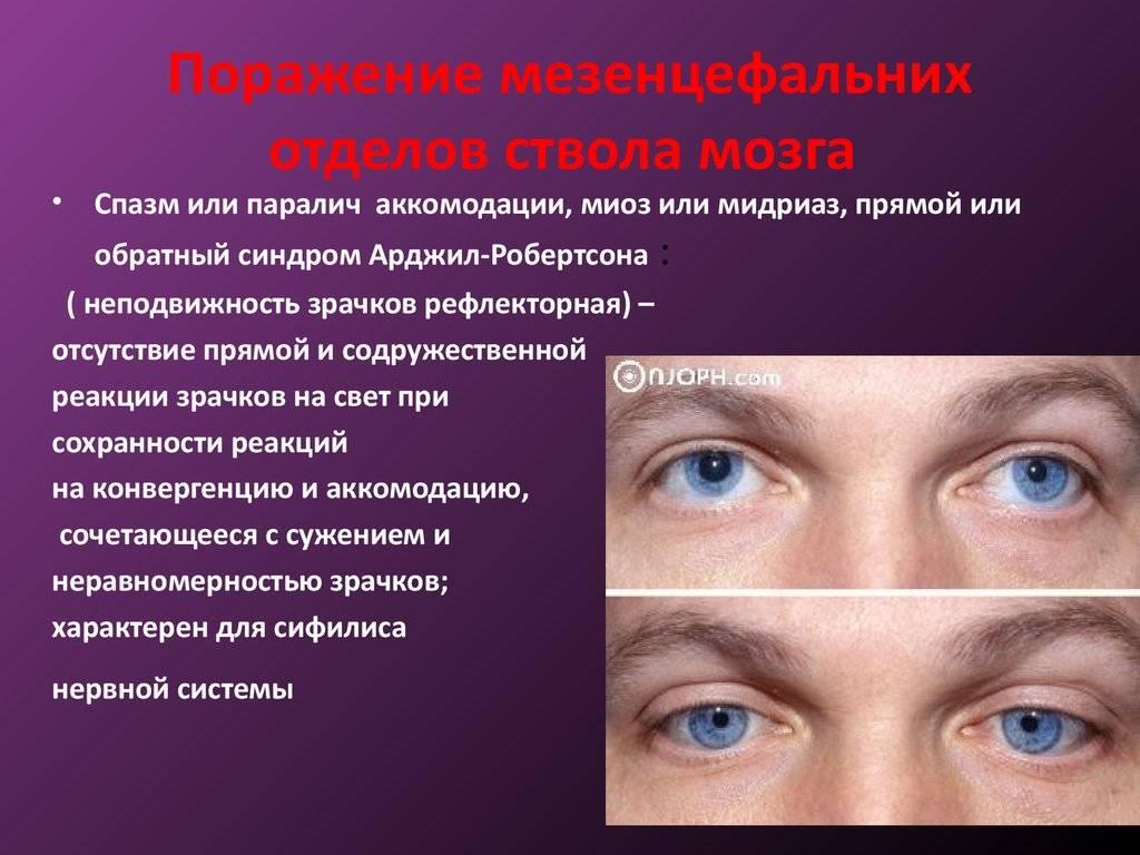 Лечение и симптоматика пареза аккомодации