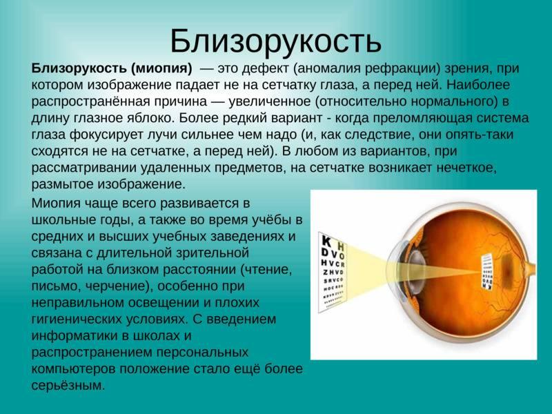 Прогрессирующая близорукость (миопия): симптомы, диагностика и лечение. клиники. консультация офтальмолога.