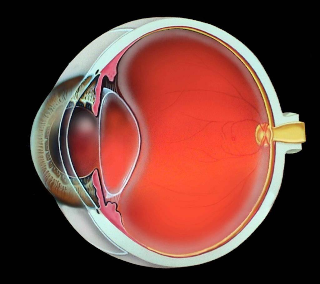 Плохое зрение после замены хрусталика