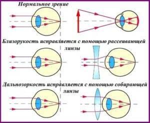 Линзы с диоптриями – диоптрические контактные плюсовые (на плюс)