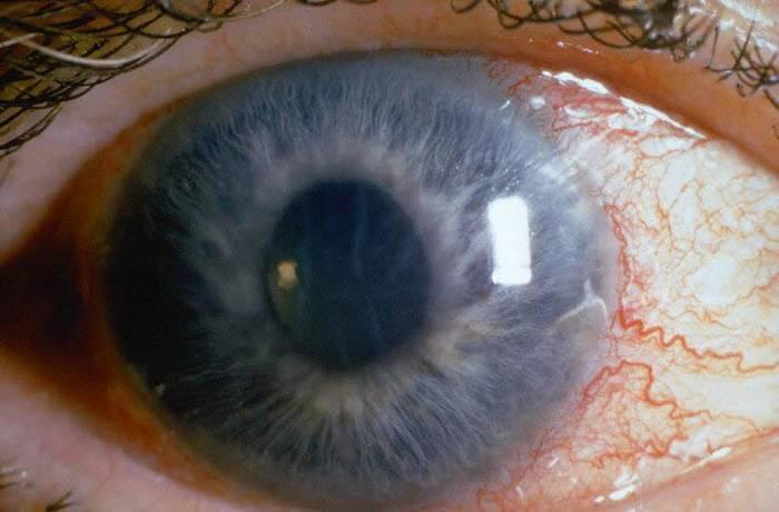 Катаракта: симптомы, диагностика, лечение и профилактика