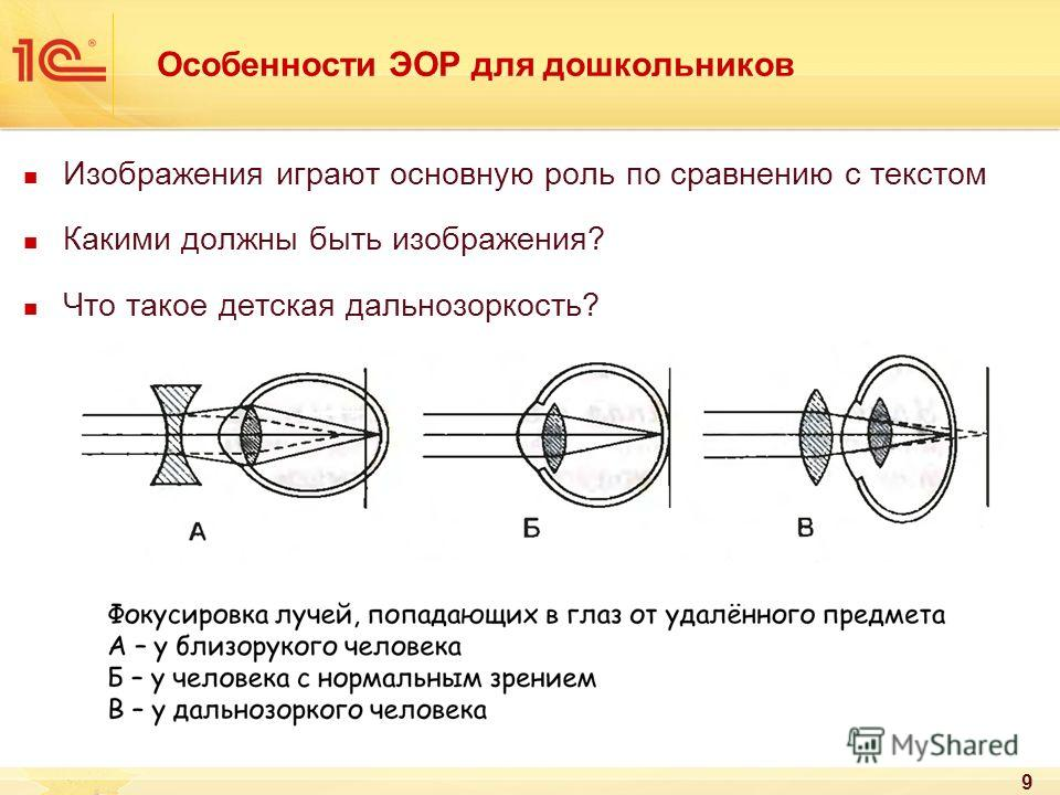 Зрение плюс и минус: что значит, как понять, что делать