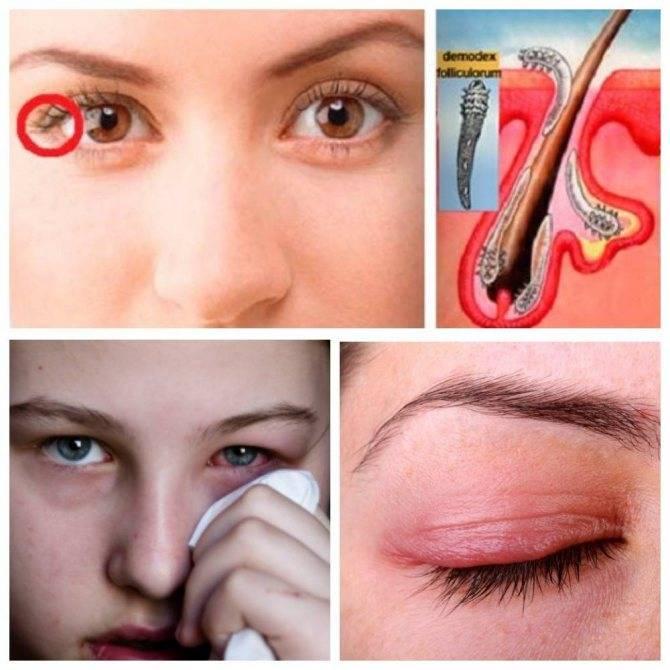 Ресничный клещ — симптомы и лечение проблемы