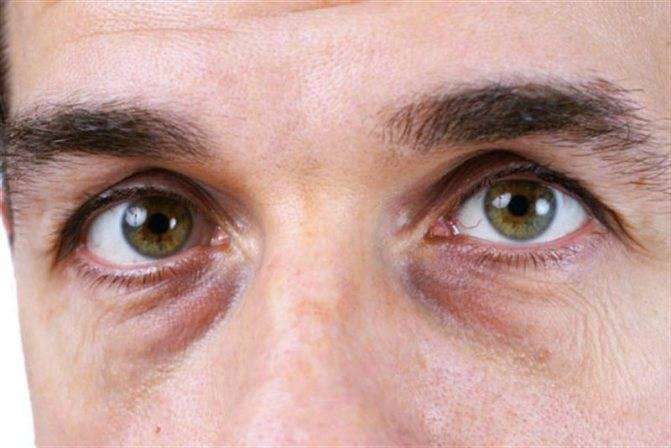 Причины возникновения тёмных кругов и синяков под глазами у мужчин и женщин, лечение