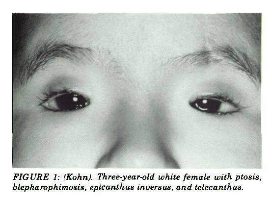 Чешуйчатый блефарит: как распознать среди других видов блефарита и не запустить заболевания. — глаза эксперт