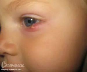 Фурункул у ребенка: причины и лечение чирия на голове, глазу и ноге у детей