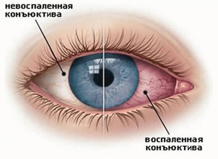 """Хронический конъюнктивит: симптомы и лечение - """"здоровое око"""""""