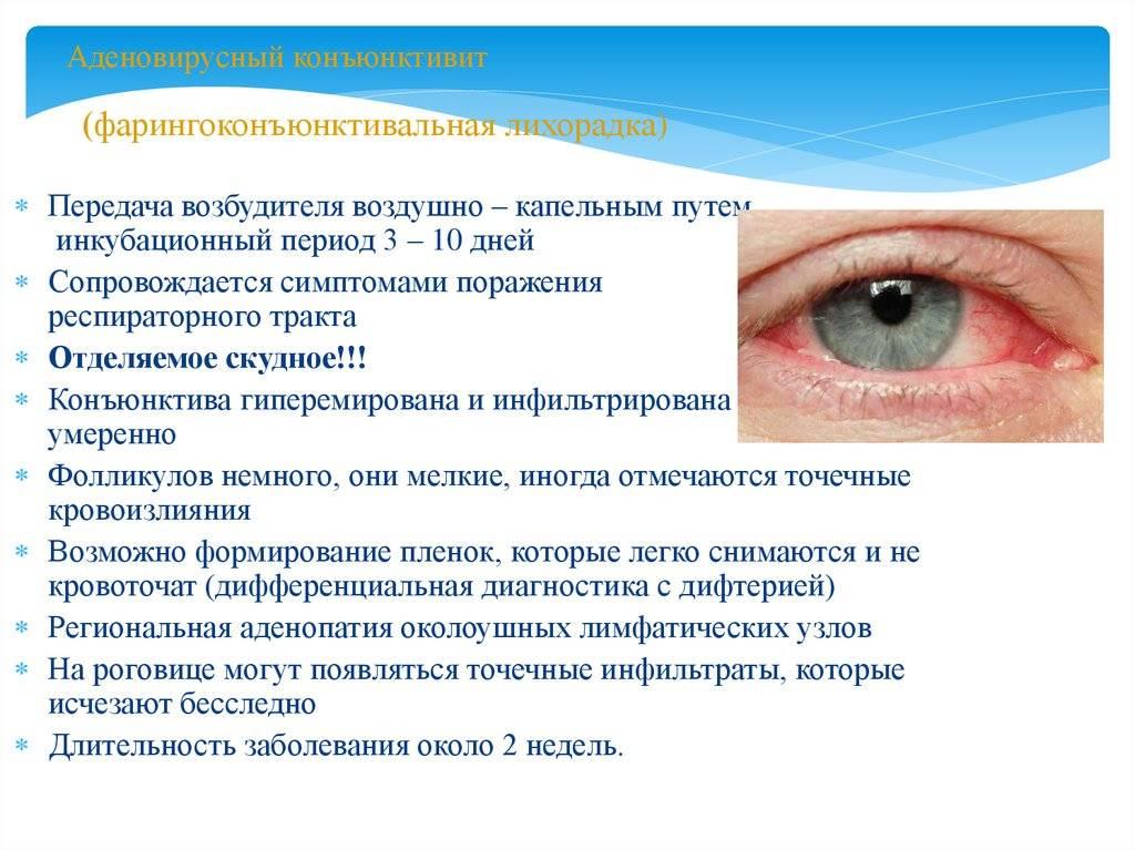 Вирусный конъюнктивит - симптомы, лечение, капли от конъюнктивита