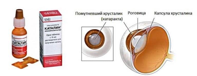 После операции на катаракту...восстановление зрения, капли   diagnos-med.ru