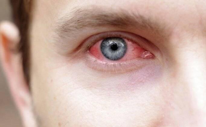 Почему болят глаза от линз? как справится с недугом в домашних условиях