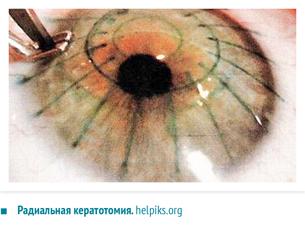 """Радиальная кератотомия - методика, плюсы и минусы; стоимость в москве, отзывы посетителей. опытные врачи, положительные отзывы. - moscoweyes.ru - сайт офтальмологического центра """"мгк-диагностик"""""""