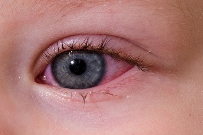 Красные глаза у ребенка при простуде и орви