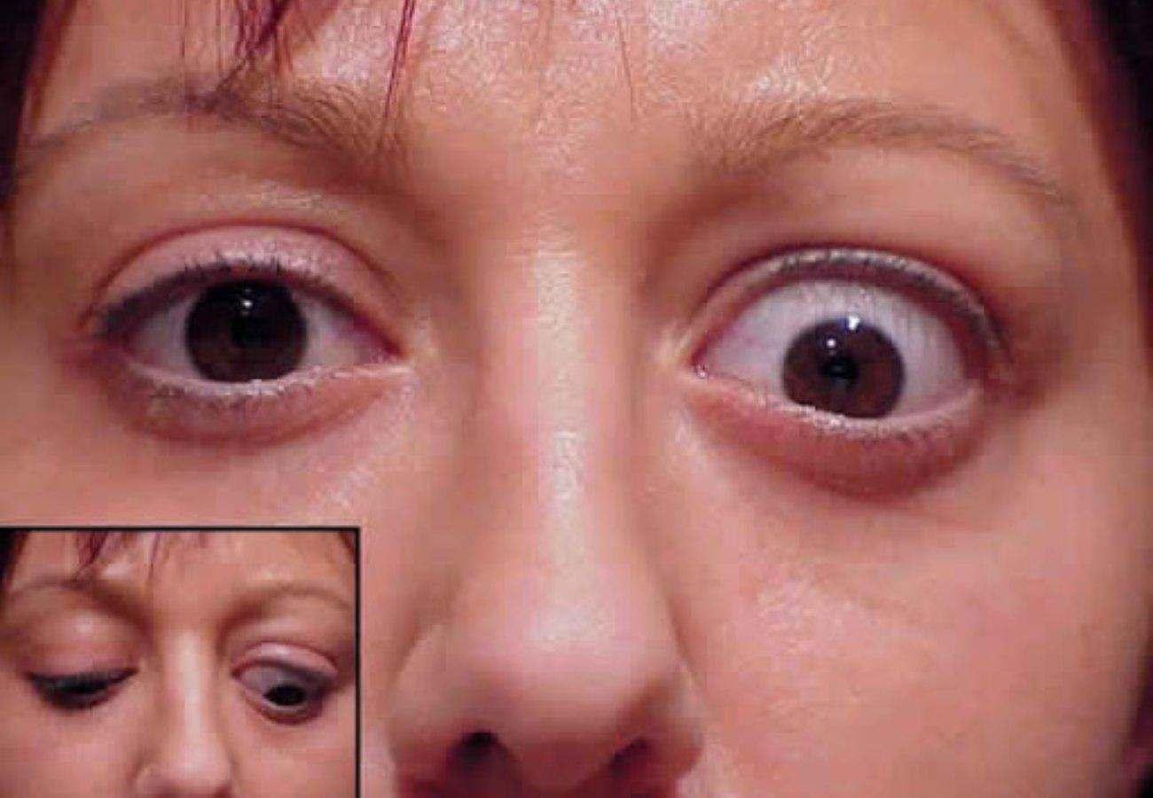 Анофтальм: что это, врожденная и приобретенная форма заболевания, симптомы, лечение и осложнения