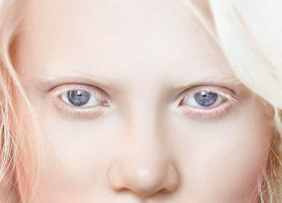 Глазной альбинизм что это описание фото